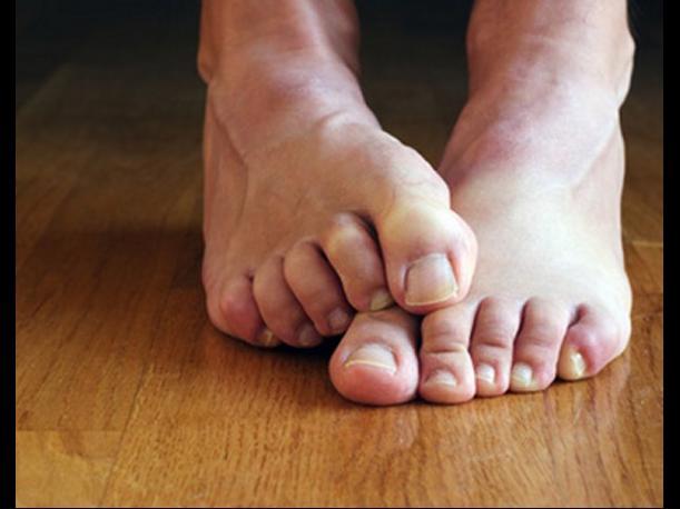 Dlaczego nalezy dbać o stopy
